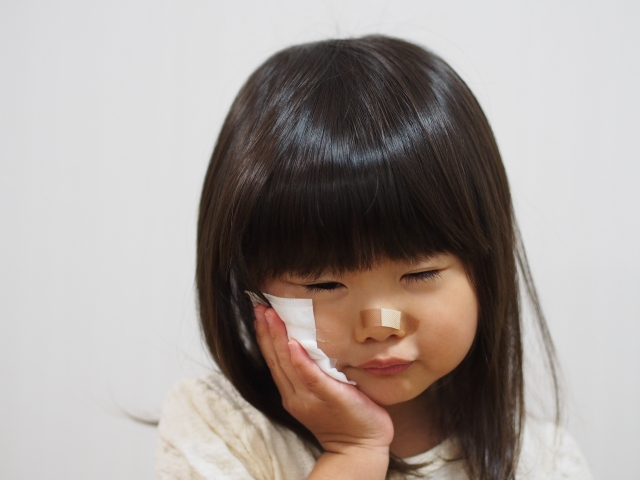 交通事故で醜状障害(顔に傷)の後遺障害のイメージ