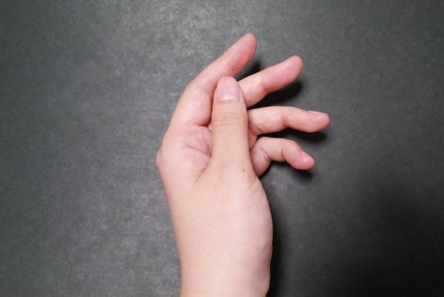 手指の交通事故後遺障害のイメージ