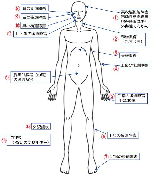 交通事故後遺障害人体図