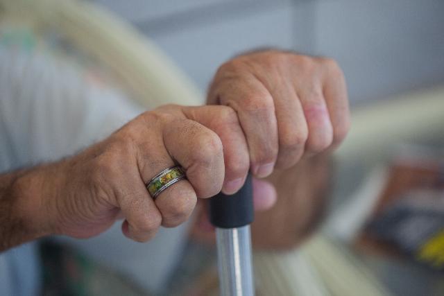 交通事故でRSD後遺障害のイメージ